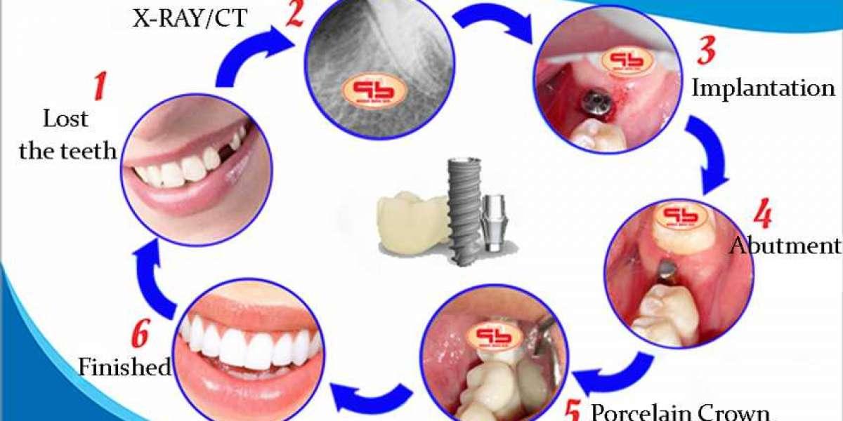 X264 Steps In Teeth Implants Watch Online Free Mp4 2k
