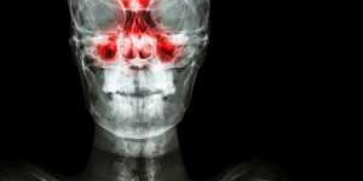 Sinus Infection Symp Registration Torrent .zip Keygen Free