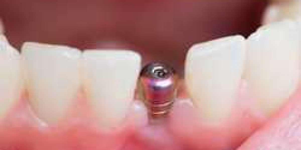 Free Teeth Cleaning Software 32 Keygen .rar Torrent